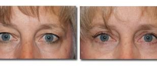 eyelids4387