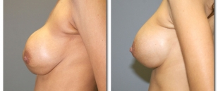 breast-revision1654a