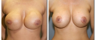 breast-revision1654b