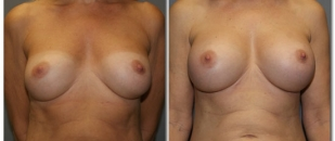 revision-breast5874