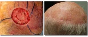 skincancer-2992