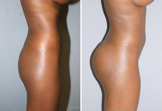 Buttock Augmentation Surgery | Washington, DC | DAVinci