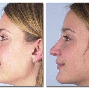 Before and After Rhinoplasty Patient 07 Gallery | DAVinci Plastic