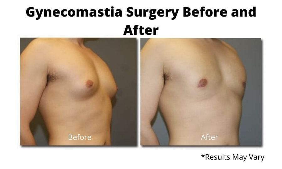 Before and after image showing the results of a gynecomastia surgery on a 25-year-old male in Washington, DC.