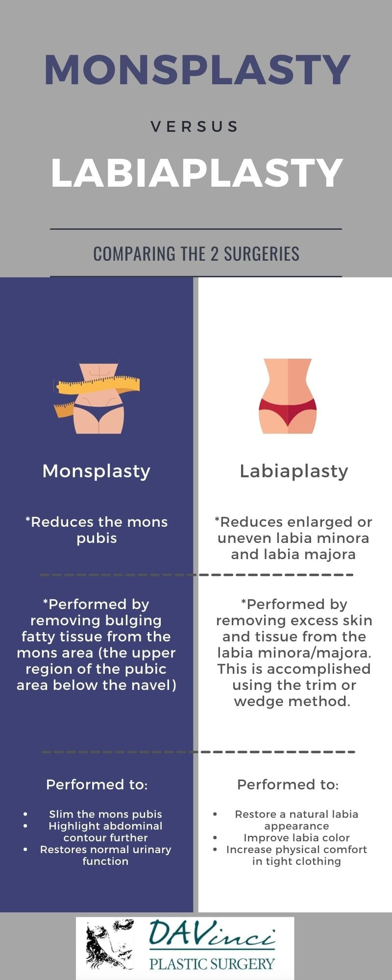 Infographic showing the differences between labiaplasty and monsplasty.