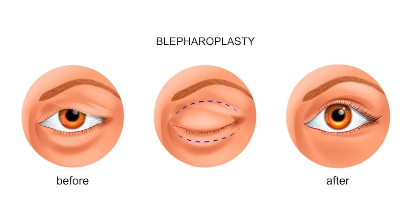 Illustrated drawing showing what the results are like after an eyelid surgery.