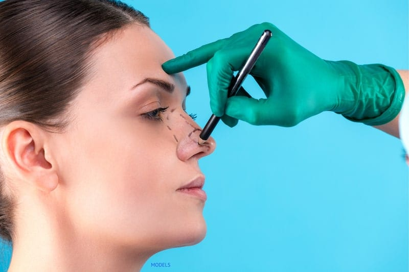 Surgeon marking woman's nose, wearing a green surgical glove.